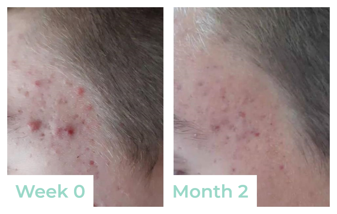 Testimonial - After 2 months - Acne Treatment routine